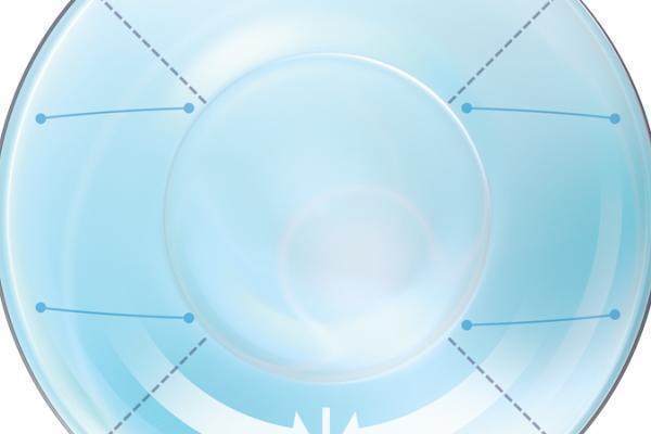 Optimoitu toorinen linssigeometria